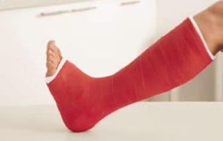 Rêver de casser une jambe