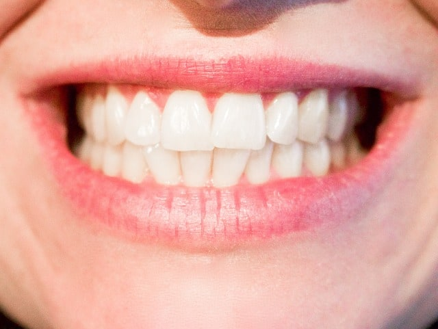 Symbole du rêve de dent.